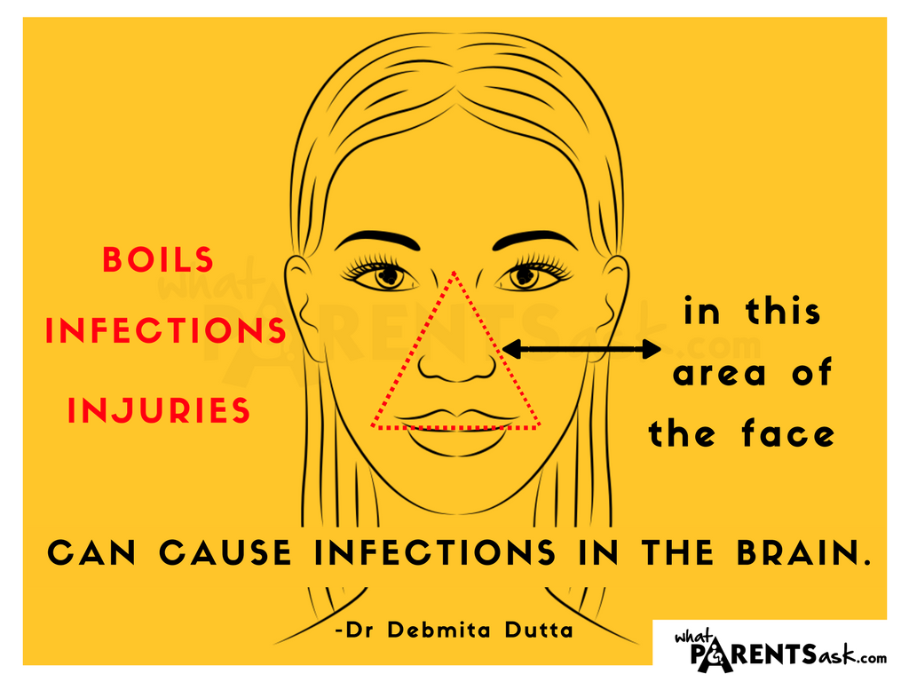 A face infection can cause a brain infection