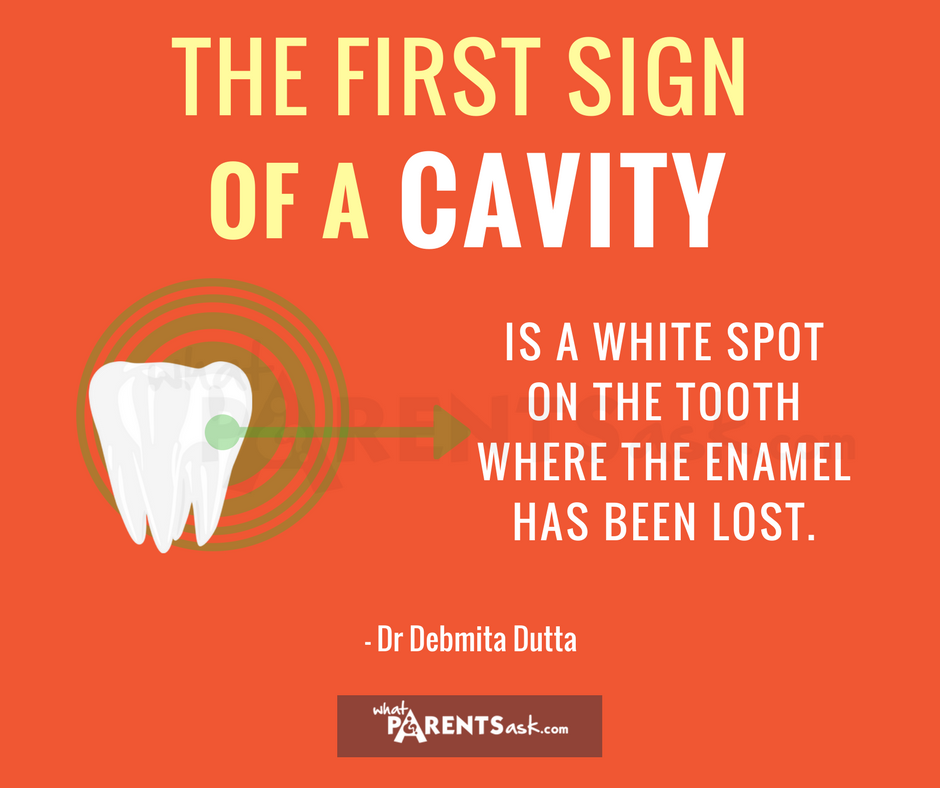 what is the first sign of a cavity